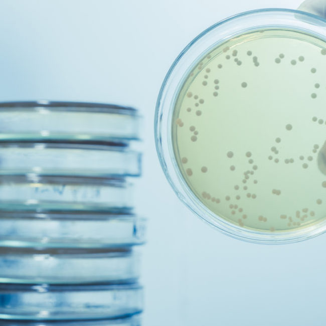 Controlling Industrial Water Systems Legionella
