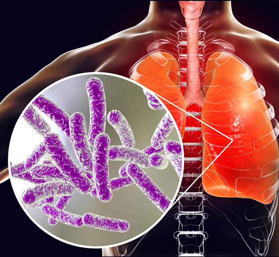 legionella in lung cavity